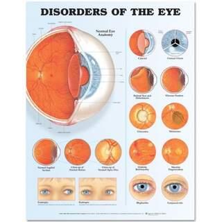 Silmäsairaudet Laminoitu juliste (silmän häiriöt)
