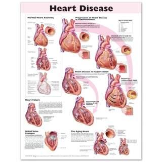Laminoitu juliste sydänsairaudesta englanniksi
