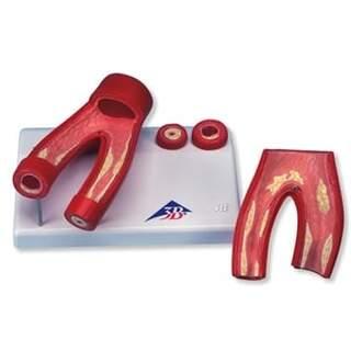 Ateroskleroosin malli poikkileikkaus valtimon, kaksi osaa