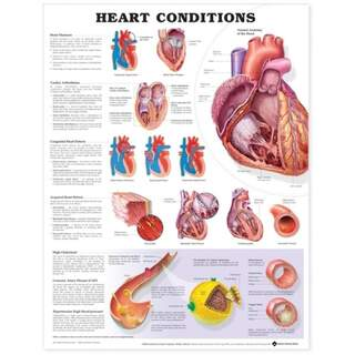 Sydänsairauslamppu juliste