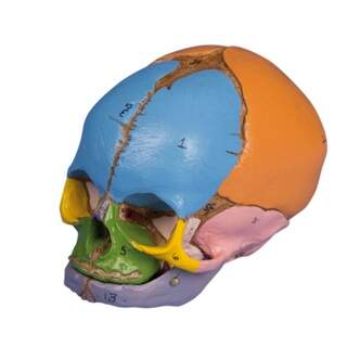 Foster Cranium
