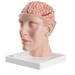 8-split aivot ja valtimoiden split pään