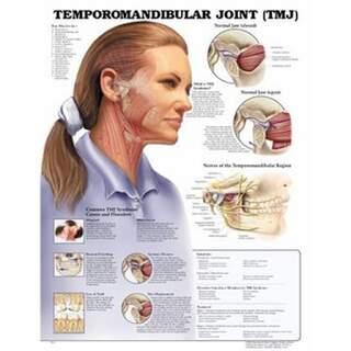 Temporomandibulaarinen nivelsairaus (TMJ) laminoitu englanti