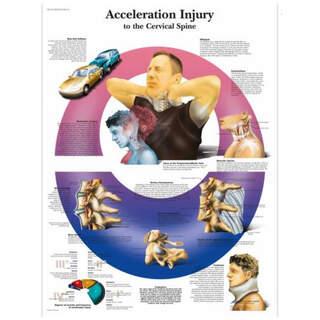 Anatomia juliste - Whiplash - niskavammoja