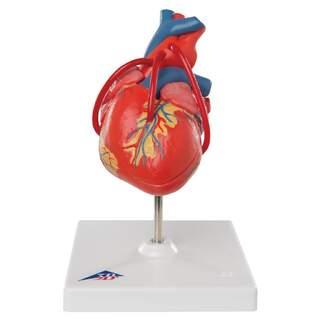 Sydämen malli, joka näyttää tuloksen ohitusoperaation jälkeen
