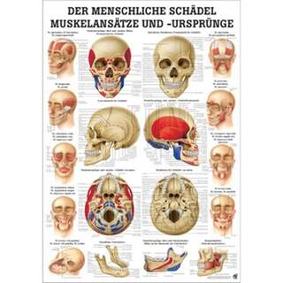 Laminoitu kallo lankku lihaksikas päänsärkyä Saksan ja Latinalaisen