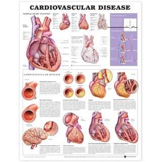 Laminoitu juliste sydän- ja verisuonitaudeista englanniksi