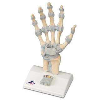 Käsi luuranko nivelsiteitä ja rannekanavaoireyhtymä